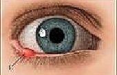 Hoe de zorg voor een Stye in het oog