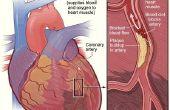 Hoe lang hartaanval symptomen duren?