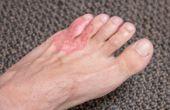 Natuurlijke anti-schimmel behandelingen