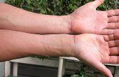 Tekenen & symptomen van inflammatoire ziekte