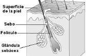 Wat zijn de oorzaken van nodulair Acne?