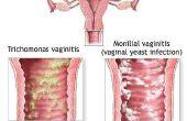 Opluchting voor vaginale irritatie, jeuk en zwelling