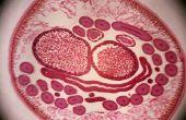 Rondworm symptomen bij de mens