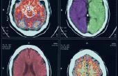Tekenen & symptomen van een gebrek aan zuurstof naar de hersenen