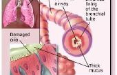 Wat Is astmatische Bronchitis?