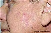 Hoe de behandeling van droge, schilferige huid vlekken