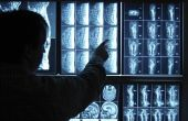 Verschil tussen een neurochirurg & een neuroloog