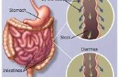 Voedingsmiddelen die leiden diarree tot