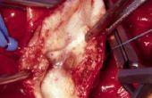 Het verwijderen van Plaque In de slagaders
