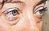 Hoe te te verlichten moe en gezwollen ogen