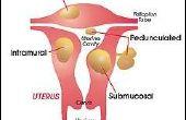 Hoe ziet een Fibroid eruit?