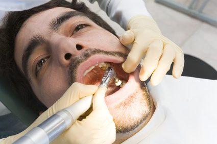 Nieuw Hoe te verwijderen van de gouden tanden - wikisailor.com DU-47