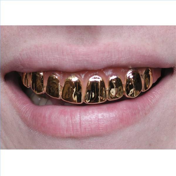 kroon tandarts kosten