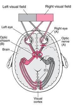 oogzenuw beschadiging symptomen