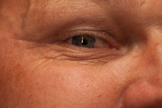 irritatie onder oog