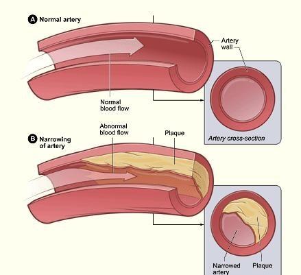 Verstopte aders in benen symptomen