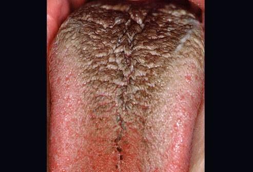 zijn vleesboompjes op je huid gevaarlijk
