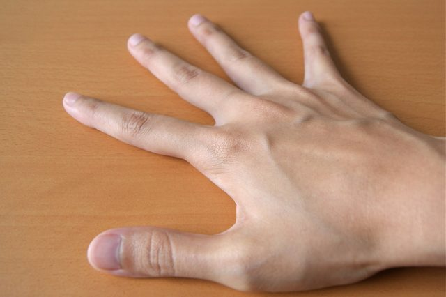 gebroken duim oefeningen