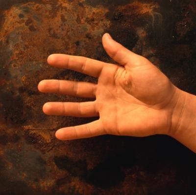 basis gewricht ringvinger