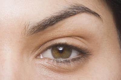rimpels in de buurt van de ogen